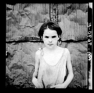 Dorothea Lange Damaged Child